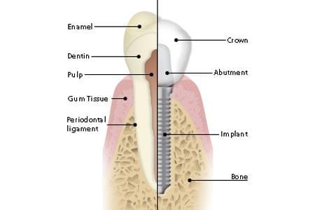 Dental implants from Sydenham Dental Centre Christchurch