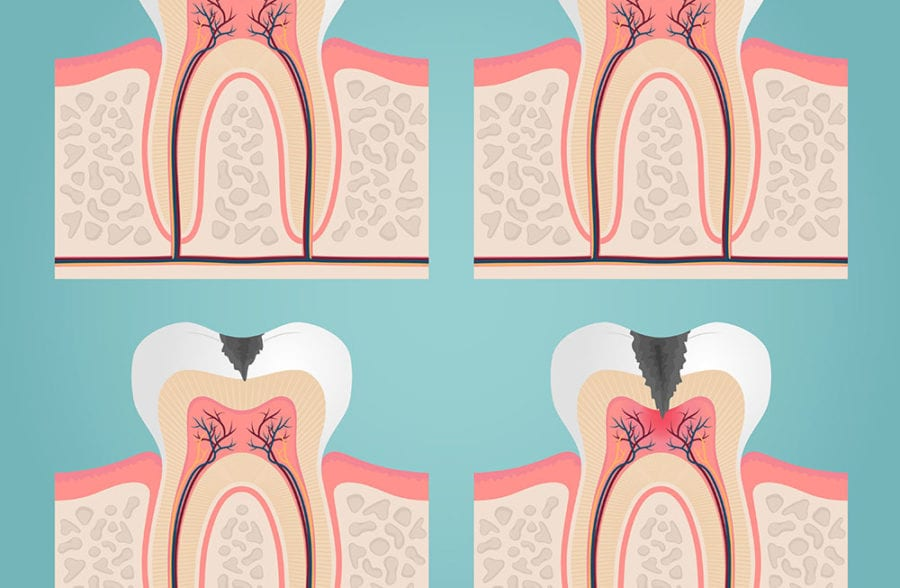 Root canal and tooth anatomy