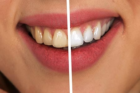 Teeth whitening services in Christchurch