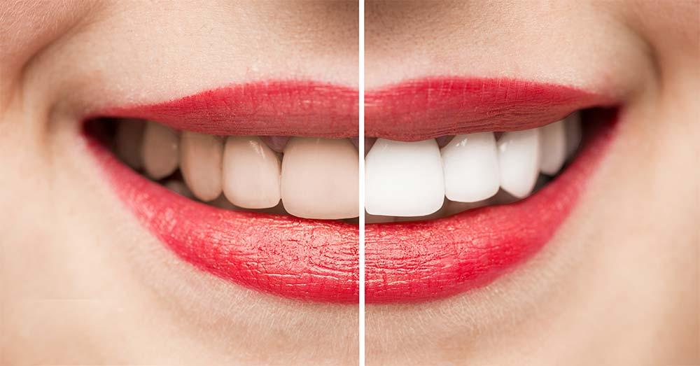 Teeth whitening services in Sydenham